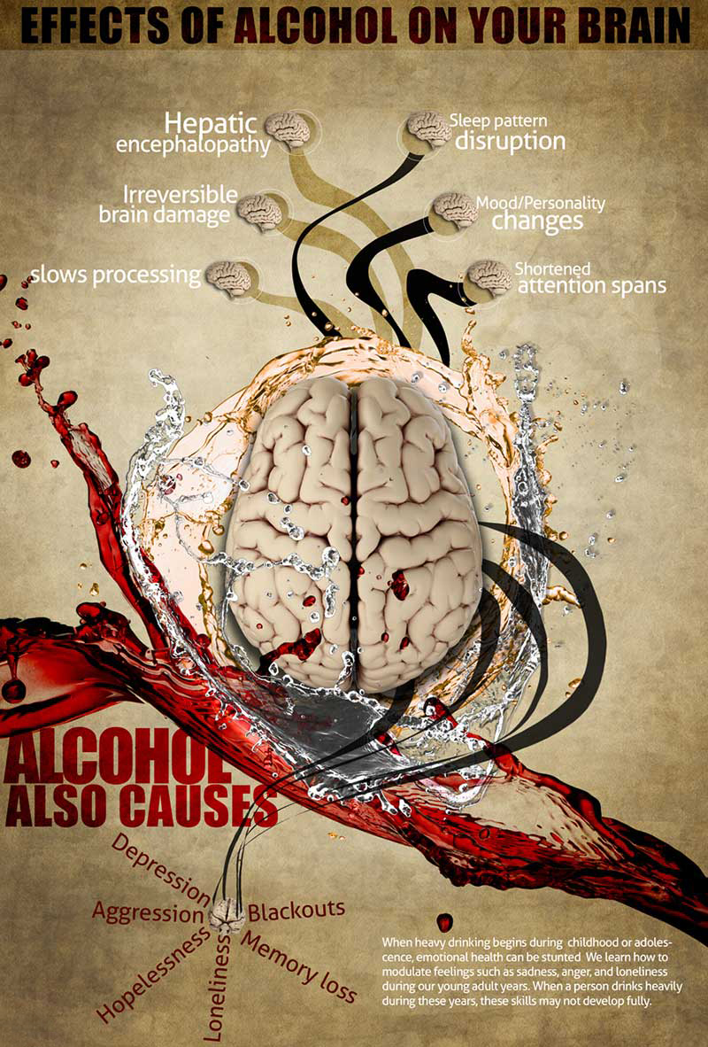 alcohol-and-the-brain-infographic-2